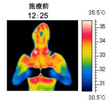サーモグラフィーで計ったインディバ施術を受ける前の全身体温写真