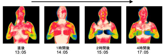 サーモグラフィーで計ったインディバ施術後の全身の体温変化を表した写真