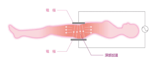 2つの電極をお腹と背中に置き、深部加温が可能なインディバ施術のイメージイラスト