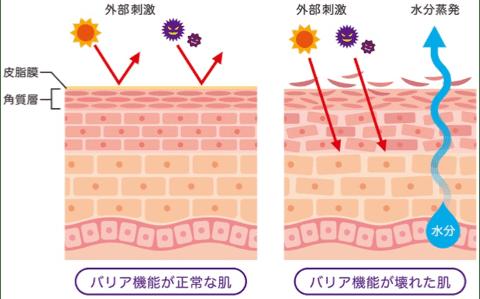乾燥肌・敏感肌の原因を説明するイラスト